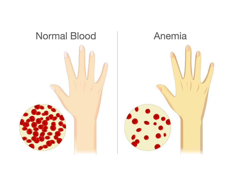 Anemia yellow skin